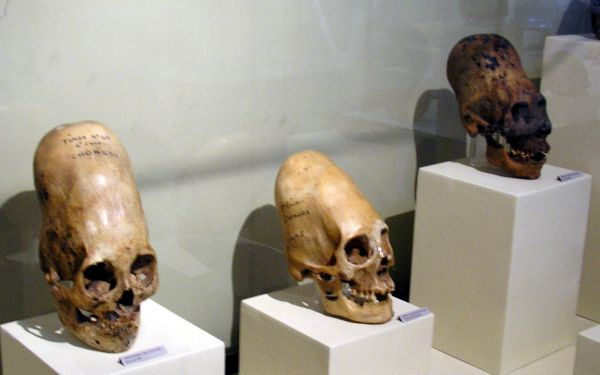 Elongated Skulls in Paracas Peru